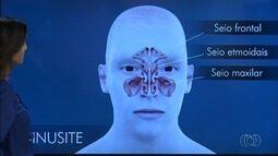 Bom Dia Responde fala sobre sinusite