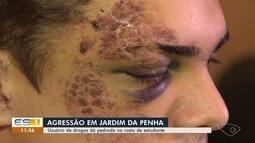 Estudante é atingido por pedra no rosto enquanto lanchava com amigos e vai para UTI, em Vi