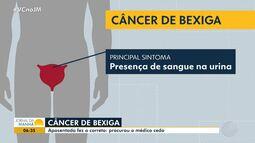 Bahia deve ter 400 novos casos de câncer de bexiga apenas este ano