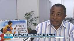 Bahia registra cerca de cinco mil casos de turberculose em 2018