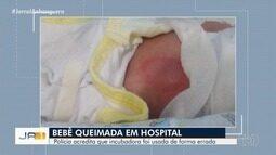 Polícia começa a ouvir funcionários do hospital onde bebê sofreu queimaduras, em Goiânia