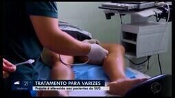 Projeto gratuito em Divinópolis ajuda no tratamento de varizes