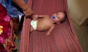Pesquisa estuda casos de má formação em bebês de comunidade agrícola