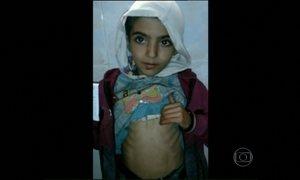 Mais de 16 pessoas morrem de fome na cidade de Madaya, na Síria