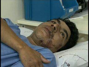 Carpinteiro sobrevive à queda de 13 andares - Para os médicos é um caso raro.