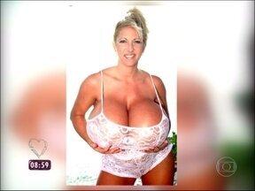 Maiores seios do mundo: norte-americana usou implante de polipropileno - Annie Hawkins-turner é outra americana peituda que carrega 25 kg de peito