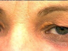 Alta no colesterol causa xantelasma - A Xantelasma são bolinhas de gordura que surgem nas pálpebras dos olhos. A manifestação das bolinhas é um aviso do corpo para o aumento significativo do colesterol.