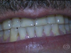Paciente sofre com bruxismo durante o sono - O comerciante Márcio Bosio, sofre com o bruxismo, um hábito parafuncional que leva o paciente a ranger os dentes de forma rítmica durante o sono.