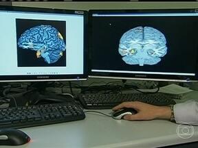 Composto químico breca a evolução de doenças neurodegenerativas - A descoberta é uma esperança para pacientes com Alzheimer e Parkinson. Pesquisadores afirmam que se trata de um passo importante na busca por um tratamento para essas doenças. O estudo foi feito em ratos de laboratório.