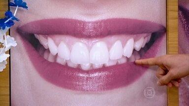 Sorriso perfeito combina exposição da gengiva, curvatura ideal e proporção dos dentes - O cirurgião dentista Gustavo Bastos explica que o clareamento dos dentes deve ser feito no consultório. Ele ressalta ainda que estudos recentes mostram que a cor natural deve ser preservada.