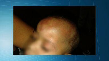 Homem suspeito de agredir bebê com deficiência em Cuiabá está foragido - Homem suspeito de agredir bebê com deficiência em Cuiabá está foragido