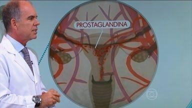 Bem Estar dá dicas de como prevenir a cólica - A cólica é causada pela contração do útero, porque há uma descamação do endométrio e um sangramento que causa dor. Ginecologistas tiram dúvidas sobre a cólica, endometriose, TPM.