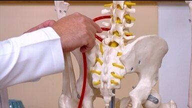 Entenda porque uma dor no nervo ciático pode irradiar pelo corpo - No caso de problemas no nervo ciático, a cirurgia só é indicada quando se tem uma hérnia de disco comprimindo o nervo.