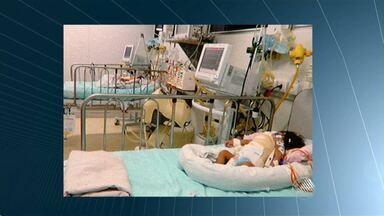 Siamesas baianas que operaram em Goiás têm estado de saúde considerado gravíssimo - As irmãs são de Itamaraju e passaram por uma cirurgia em Goiás.