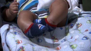 Bebê de 4 meses que nasceu com pés tortos luta por tratamento, em Goiânia - Família diz que está difícil obter tratamento no Crer.