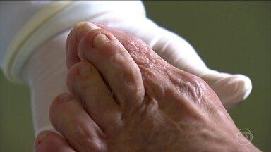 Podóloga tira dúvidas sobre cuidados com os pés - Unha encravada, dor na sola dos pés e calos são problemas comuns. Não é aconselhável usar um sapato novo por muitas horas por dia. Um adesivo de proteção pode prevenir as bolhas.