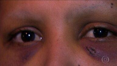 Mulher é torturada e tem cabelo raspado pelo ex-marido em Guarulhos - A mulher foi espancada e humilhada pelo ex-marido, inconformado com a separação. A vítima, mantida em cárcere privado, só foi libertada porque a mãe percebeu que tinha algo de estranho no sumiço da filha. O ex-marido acabou preso.