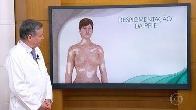 Não é recomendável pessoas com vitiligo fazer tatuagens - A tatuagem pode agravar a problema e as manchas aumentarem.