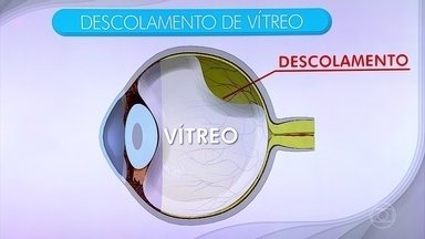 Descolamento de vítreo pode levar adultos a cegueira - Com o passar dos anos o vítreo, uma substância gelatinosa que se encontra em contato com a superfície da retina, pode desgrudar. Os pacientes passam a notar subitamente a aparição de sombras móveis no campo de visão.