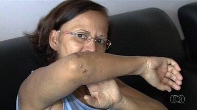 Moradores do Parque Amazônia reclamam de falta de sinalização em avenida - Eles contam que quatro pessoas da mesma família foram atropeladas na região.
