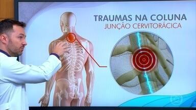 Maior parte dos traumas acontece na coluna cervical - A medula, estrutura que conecta o cérebro a todo o resto do corpo, passa num canal bem estreito da coluna. E ela pode ser comprometida quando a pessoa tem um traumatismo da vértebra, perdendo os movimentos das pernas e braços.