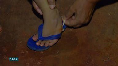 Menino que precisa corrigir deformidade no pé ainda não conseguiu fazer a cirurgia - Menino de 4 anos que precisa corrigir deformidade no pé ainda não conseguiu fazer a cirurgia.