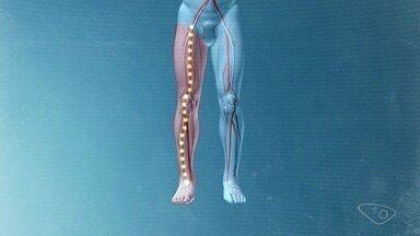 Cirurgião vascular do ES fala sobre como evitar a trombose em longas viagens - Movimentar o corpo faz muito bem à saúde e evita muitas doenças.