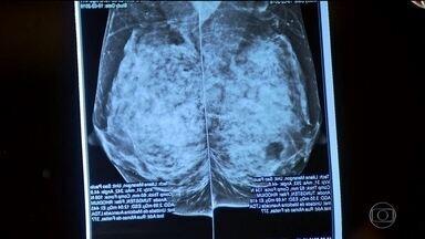 Mulheres enfrentam longa espera para fazer exames contra o câncer de mama na rede pública - Quanto mais cedo foi feito o diagnóstico de câncer de mama, maior a chance de cura. No entanto, tem paciente que espera há dois anos para poder fazer o exame.
