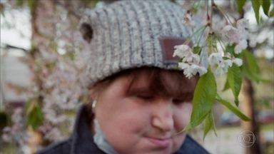 Jovem de 21 anos faz transplante de rosto e se torna a mais jovem receptora nos EUA - Trauma do rosto de Katie Stubblefield ocorreu em 2014, quando tinha 18 anos; ela foi atingida por um disparo de bala auto-infligida. Aos 21 anos, recebeu um transplante facial total.