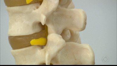 Saúde no JPB: postura durante uso de celular pode trazer prejuízos para coluna - Um dos problemas é a hérnia de disco.