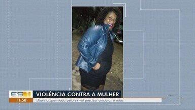 Diarista que teve corpo incendiado vai ter que amputar uma das mãos - Segundo a família, Marciane Pereira dos Santos, de 36 anos, foi vítima do ex, que está foragido. Ela teve queimaduras de terceiro grau e está com 30% do corpo queimado.