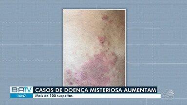 f5c9bd64b8d22 Bem Estar   Mancha escura que cresce em pele de adultos deve ser avaliada  por dermatologistas   Globoplay