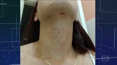 Mulher agredida por companheiro enfrenta dificuldades para registrar o crime, em Manaus - Namorado chega e a ser detido em delegacia, mas foge do flagrante.