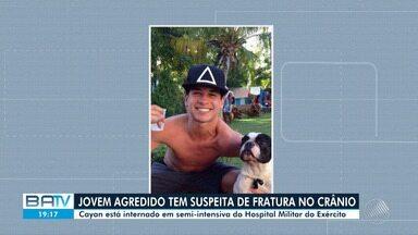 Jovem agredido em Salvador ao tentar apartar briga teve traumatismo craniano, diz pai - O crime aconteceu na madrugada de terça-feira (2), apos vítima assistir a jogo do Brasil.