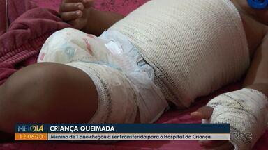 Menino tem ferimentos graves ao se queimar com água quente em Ponta Grossa - Ele foi levado para o hospital com queimaduras no peito e nos braços.