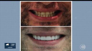 Saúde: Dentista tira dúvidas sobre processos para corrigir imperfeições do sorriso - Saúde: Dentista tira dúvidas sobre processos para corrigir imperfeições do sorriso