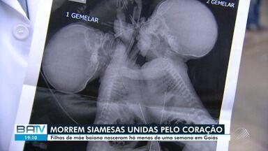 Filhas de mãe baiana, gêmeas siamesas que nasceram unidas pelo coração morrem - Irmãs estavam internadas em unidade de saúde de Goiás.