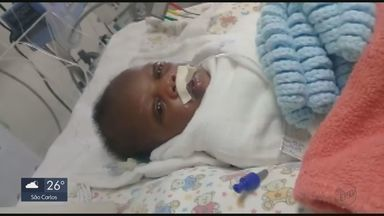 Bebê haitiana que aguardava cirurgia em Rio Claro será operada em Campinas - Família havia conseguido uma liminar na Justiça para fazer a operação.