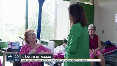 Mulheres recuperam autoestima com tatuagem após câncer de mama - Durante essa semana, HRT faz mutirão de reconstrução mamária. Local pretende atender 70 mulheres até sexta-feira.