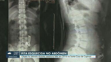 Jovem descobre fita dentro do abdômen em exame de rotina quatro anos após cirurgia - Em nota, a Santa Casa de Misericórdia de Capivari afirmou que irá apurar o caso.