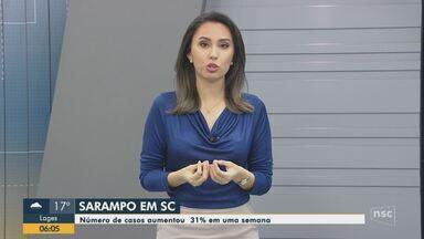 Número de casos de sarampo aumenta 31% em uma semana em Santa Catarina - Número de casos de sarampo aumenta 31% em uma semana em Santa Catarina