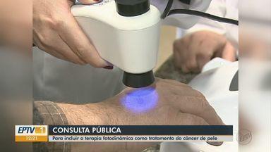 Tratamento para câncer desenvolvido em São Carlos é avaliado para ser incluído no SUS - Procedimento que usa laser para combater células cancerígenas passa por consulta pública.