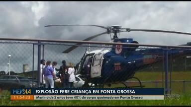 Menino tem 40% do corpo queimado durante incineração de pneus em Ponta Grossa - Criança de 5 anos foi transferida para hospital de Curitiba nesta sexta-feira (31).