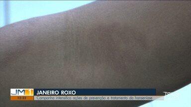 Combate à hanseníase é tema da campanha do Janeiro Roxo no Maranhão - O município de São José de Ribamar é um dos municípios com o maior número de estados.