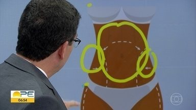 Médico tira dúvidas sobre lipoaspiração - Rafael Anlicoara explica perigos e cuidados necessários.