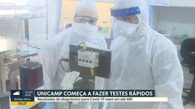 Laboratórios no interior fazem testes do Covid-19 - HC de Botucatu e Unicamp, em Campinas, fazem análises.