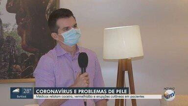 Médicos relatam coceira, vermelhidão e erupções na pele de pacientes com Covid-19 - Dermatologista esclarece dúvidas sobre o novo coronavírus.