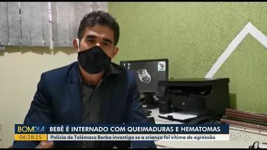 Bebê é internado com queimaduras e hematomas - Polícia de Telêmaco Borba investiga se a criança foi vítima de agressão.