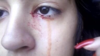 """Adolescente 'chora sangue' e intriga família no interior de São Paulo - A mãe de uma adolescente de 15 anos está em busca de um diagnóstico que possa explicar o motivo dela ter começado a """"chorar sangue""""."""