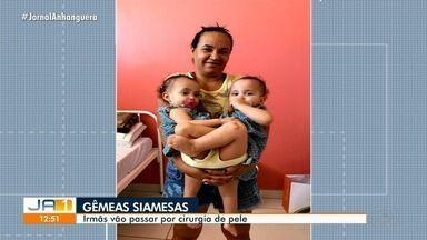 Gêmeas siamesas vão passar por cirurgia para colocar expansor de pele, em Goiânia - Processo é uma preparação para cirurgia de separação.